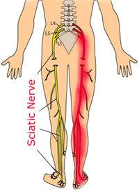 Sciatic-nerve2